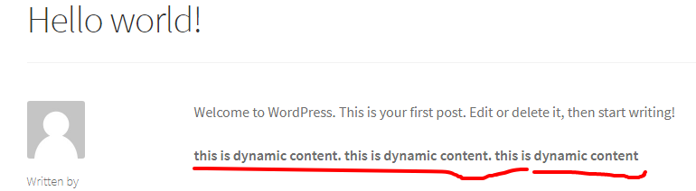 How to add dynamic content in wordpress post with wordpress